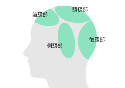 部位から見る薄毛の原因