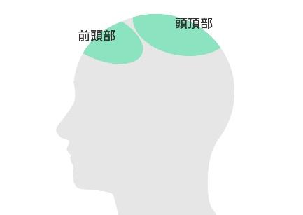 前頭部・頭頂部が薄毛の場合