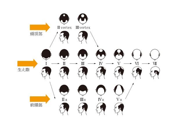 AGAのステージ分布図