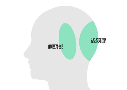 側頭部・後頭部が薄毛の場合
